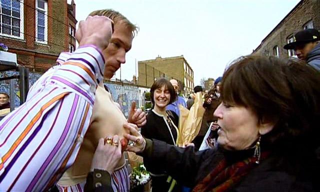 """Serialas """"Embarrassing Bodies"""" (2008), S01, E02"""