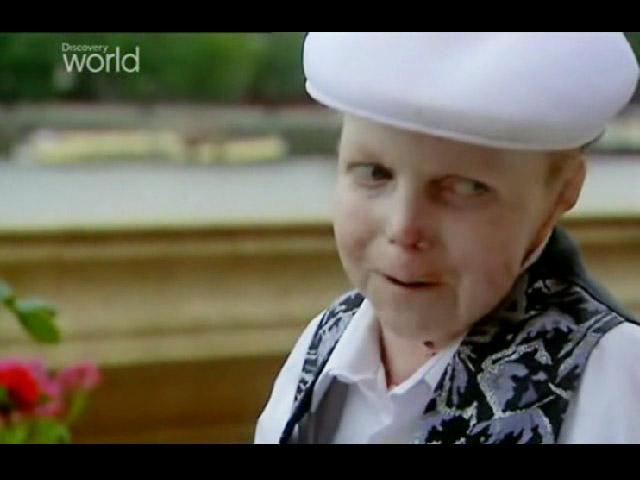 The Boy Whose Skin Fell Off (2004)